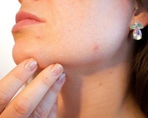 Tarsul dietary supplement can treat acne