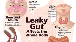 leaky gut syndrome infographicTarsul