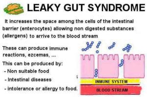 leaky gut syndrome illustration Tarsul