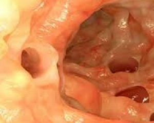 leaky gut can be treated with tarsul